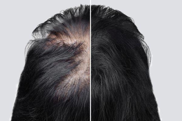Alopecia woman